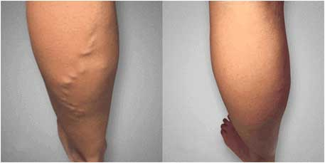varicose veins can be healed