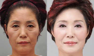Goji Cream Chống lão hóa hồi sinh cho trẻ hóa